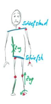 Fascien ziehen an der Körperstatik
